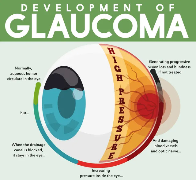 Infographic about the development of glaucoma and potential blindness