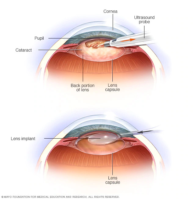 Infographic of cataract lens surgery