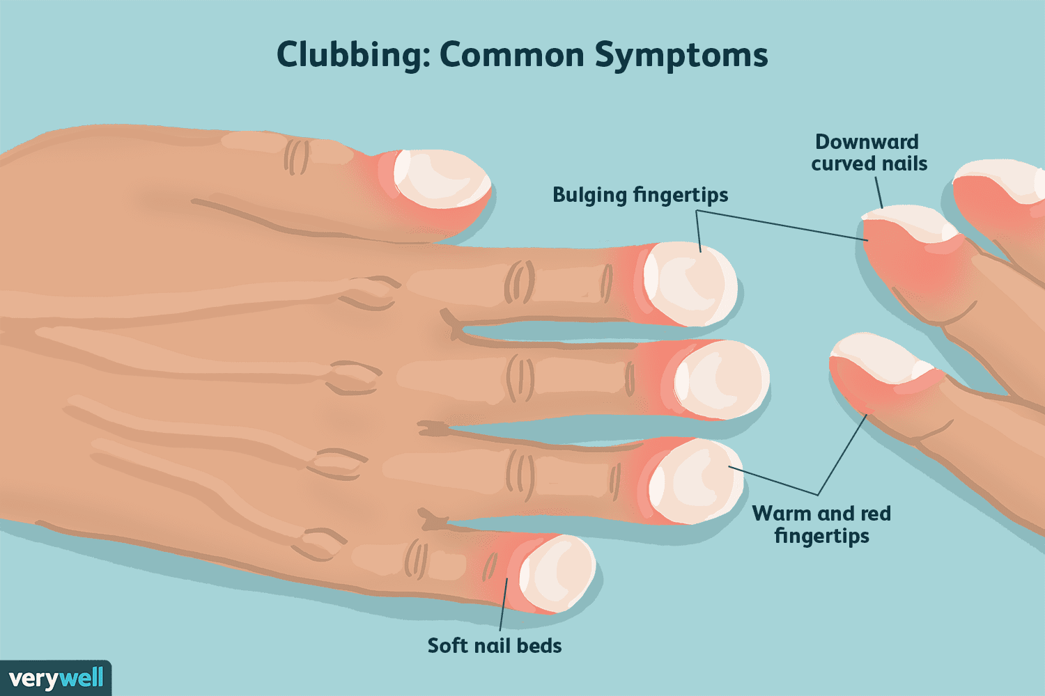 Clubbed finger symptoms related to pulmonary fibrosis