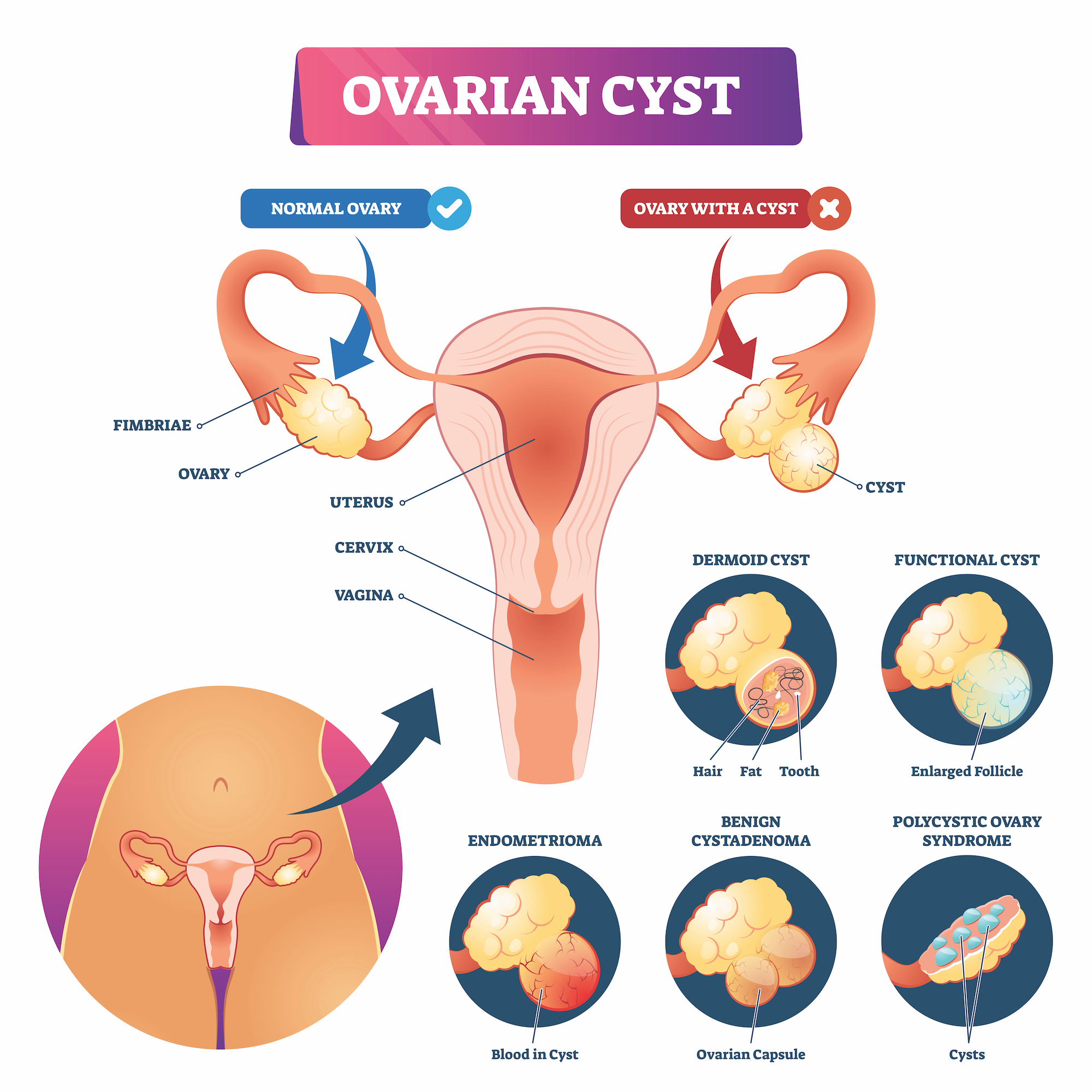 Diagram of different types of ovarian cysts