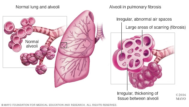 Healthy lung vs. lung with pulmonary fibrosis